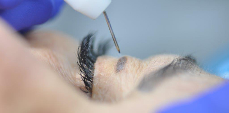 Plexer: la chirurgia senza bisturi