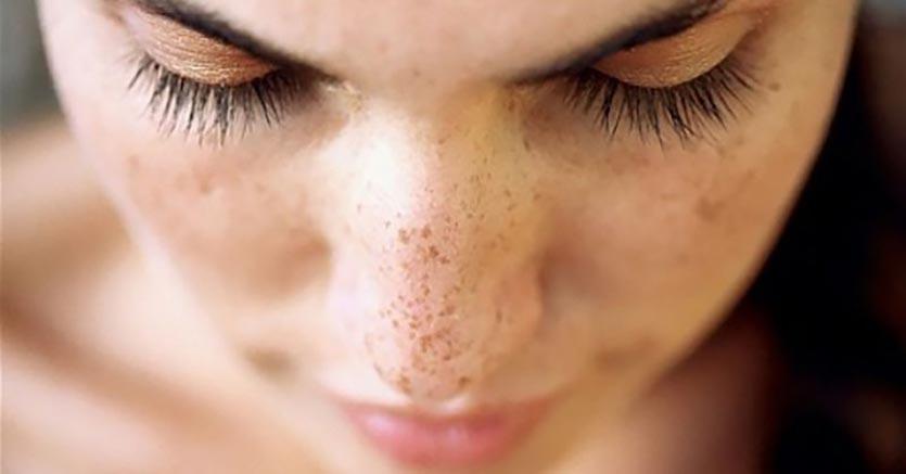 BGS: le macchie della pelle
